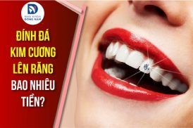 đính đá kim cương lên răng bao nhiêu tiền