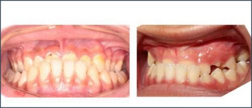 Hàm răng bị móm điều trị như thế nào 2