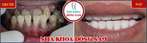Hàm răng bị móm điều trị như thế nào 6