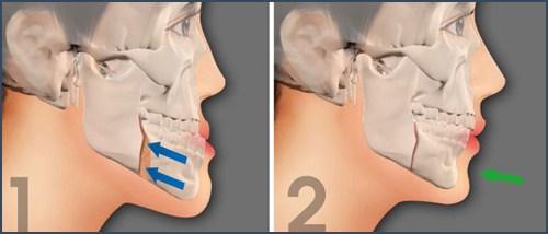 Hàm răng bị móm điều trị như thế nào 8