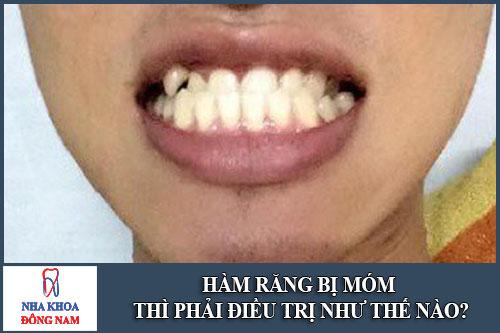 Hàm răng bị móm điều trị như thế nào