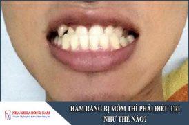 hàm răng bị móm thì phải điều trị như thế nào
