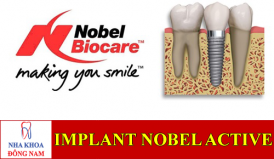 implant nobel active -1