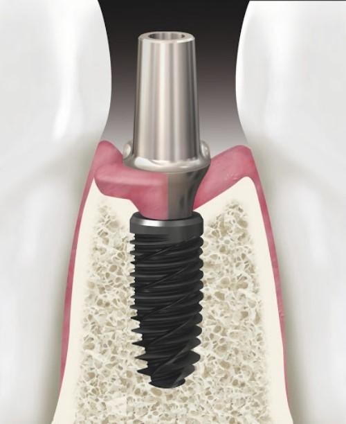 cấy ghép răng implant nobel có tốt không