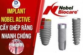 Implant Nobel Active - Giải pháp cấy ghép răng nhanh chóng