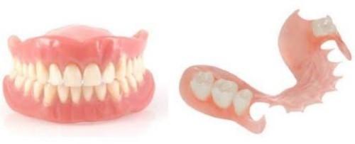 răng giả tháo lắp loại nào tốt 1