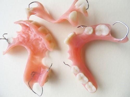 răng giả tháo lắp loại nào tốt 2