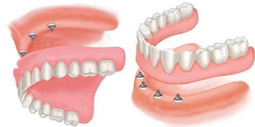 răng giả tháo lắp loại nào tốt 4