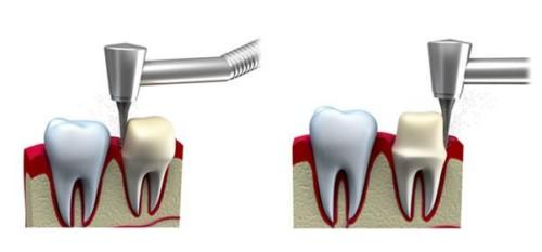 mô phỏng kỹ thuật làm răng sứ