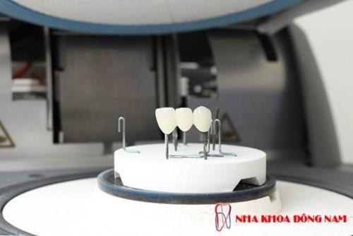 công nghệ chế tạo răng sứ cad/cam