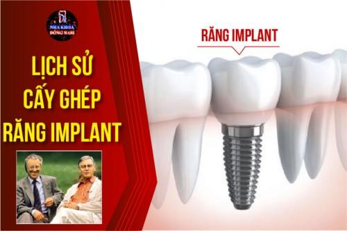Lịch Sử Cấy Ghép Răng Implant