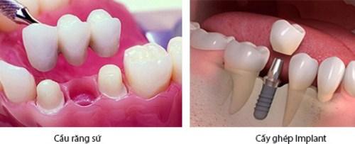 Mất răng nhai nên làm cầu răng sứ hay trồng răng Implant 2
