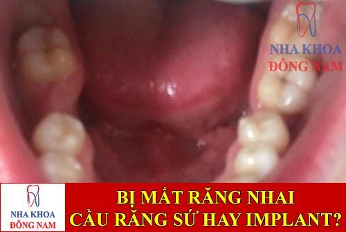 Mất răng nhai nên làm cầu răng sứ hay trồng răng Implant