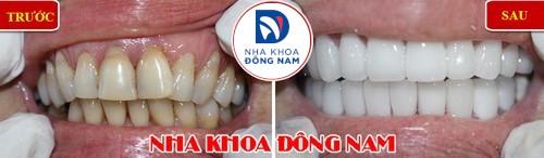bọc sứ cho răng bị mòn