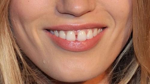 bọc sứ cho răng cửa thưa có được không 1