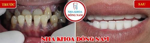 Bọc sứ cho răng hàm dưới bị thưa