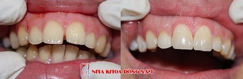 bọc sứ cho răng cửa thưa có được không 3