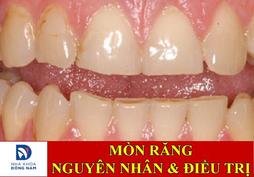 nguyên nhân và cách điều trị mòn răng -3