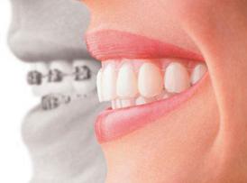 nha khoa chỉnh nha niềng răng tốt nhất tphcm -6