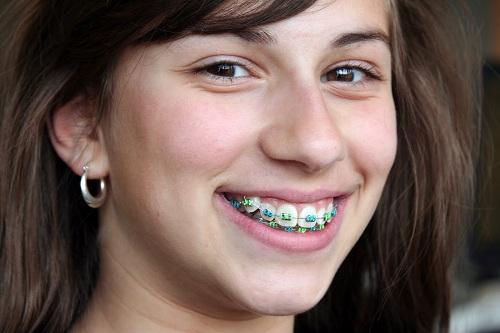 niềng răng khểnh không đẹp -2