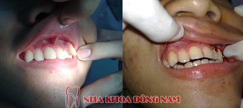 niềng răng khểnh không đẹp -3