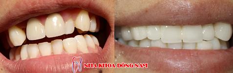 niềng răng khểnh không đẹp -4