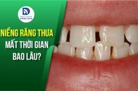 niềng răng thưa mất thời gian bao lâu