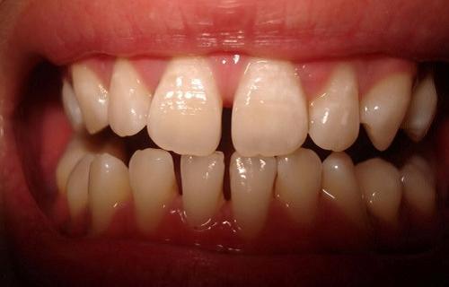 niềng răng thưa mất thời gian bao lâu -2