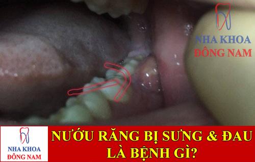 nướu răng bị sưng và đau là bệnh gì -1