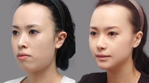 trước và sau khi phẫu thuật hàm