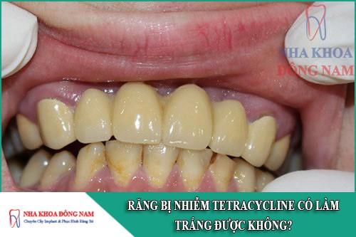 răng bị nhiễm tetracycline có làm trắng được không