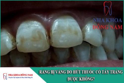 răng bị vàng do hút thuốc có tẩy trắng được không