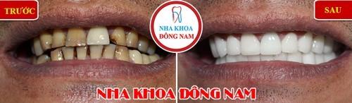 bọc sứ cho răng bị vàng do hút thuốc