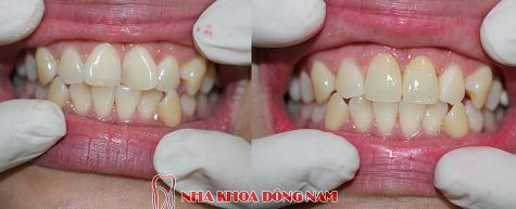 răng cửa bị xoay có niềng được không -4