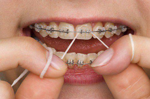 răng cửa bị xoay có niềng được không -5