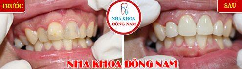 bọc 4 răng sứ cho răng bị viêm tủy