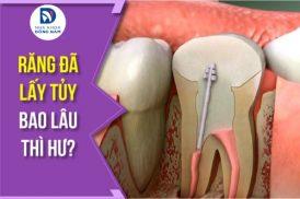 răng đã lấy tủy bao lâu thì hư