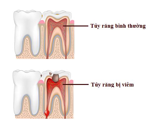 răng đã lấy tủy bao lâu thì hư -6