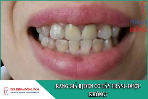 răng giả bị đen có tẩy trắng được không