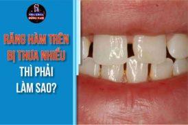 răng hàm trên bị thưa nhiều thì phải làm sao
