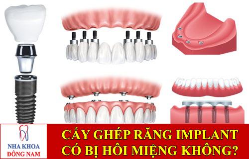 răng implant có bị hôi miệng không -1