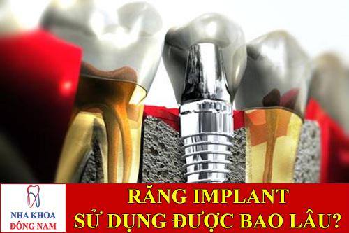 răng implant sử dụng được bao lâu -1