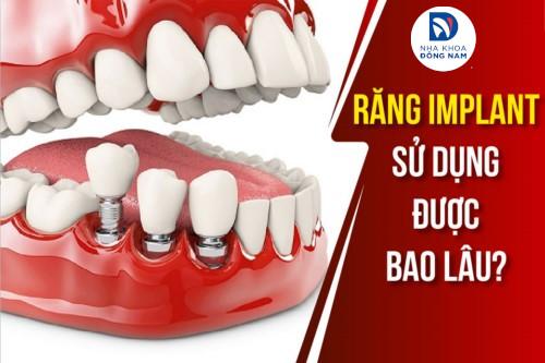 Răng Implant Sử Dụng Được Bao Lâu?