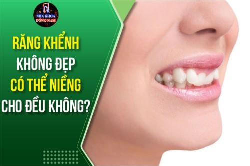Răng khểnh không đẹp có thể niềng cho đều không