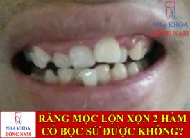 răng mọc lộn xộn 2 hàm có bọc sứ được không -1