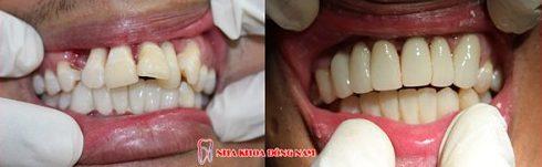 răng mọc lộn xộn 2 hàm có bọc sứ được không 2