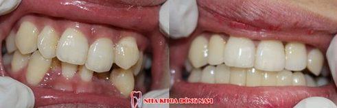 răng mọc lộn xộn 2 hàm có bọc sứ được không 3