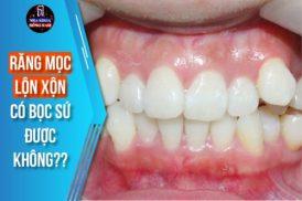 răng mọc lộn xộn 2 hàm có bọc sứ được không