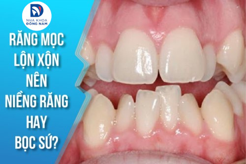 Răng mọc lộn xộn nên niềng răng hay bọc sứ