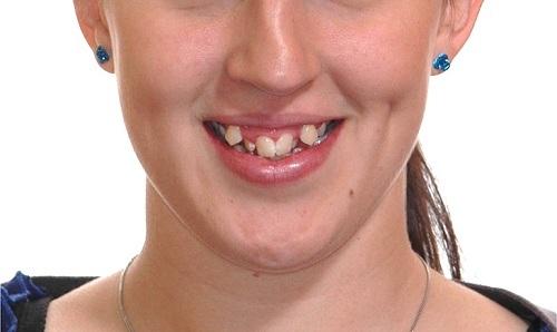 răng mọc lộn xộn nên niềng răng hay bọc sứ -2